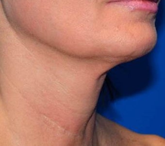 45-54 year old woman treated with PrecisionTX Laser by Cynosure for a  Non-Surgical Neck Lift after 2940644