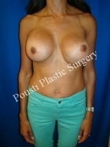 Internal Sutures (Internal Bra), Revision Breast Surgery before 1008247