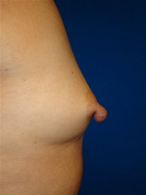 Nipple Reduction / Breast Augmentation before 1123471