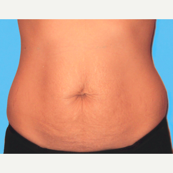 Tummy Tuck before 3810693