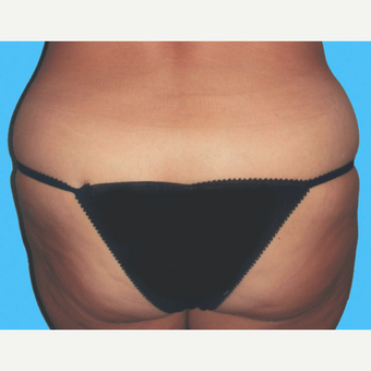 Liposuction before 3810642
