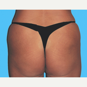 Liposuction after 3810642