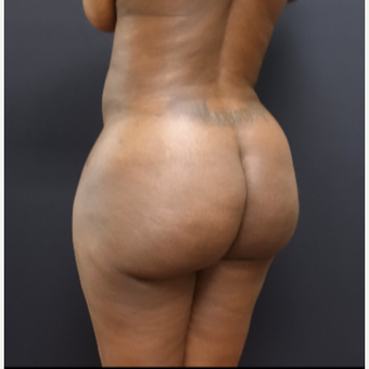 35-44 year old woman treated with Brazilian Butt Lift after 3200898