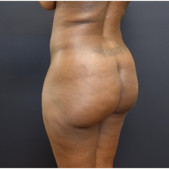 35-44 year old woman treated with Brazilian Butt Lift before 3200898