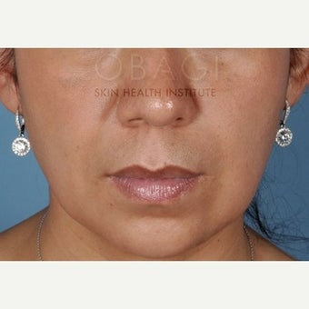 25-34 year old woman treated with Melasma Treatment after 2460319