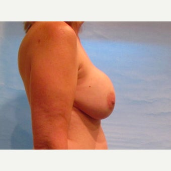54 year old woman treated with Breast Implant Revision with capsulectomy, implant exchange and mastopexy before 2572661