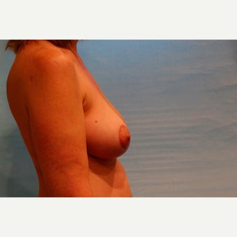 54 year old woman treated with Breast Implant Revision with capsulectomy, implant exchange and mastopexy after 2572661