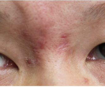 Facial Scar Removal/Treatment before 944169