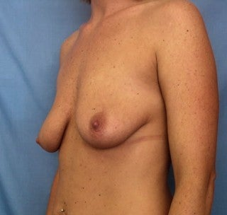 Augmentation mastopexy 368843