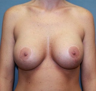 Augmentation mastopexy after 368843