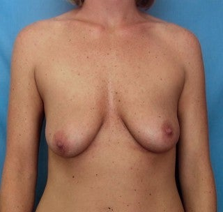Augmentation mastopexy before 368843