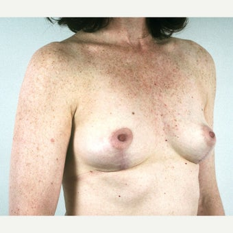 45-54 year old woman treated with Breast Implant Removal and Mastopexy after 1815474
