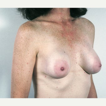 45-54 year old woman treated with Breast Implant Removal and Mastopexy before 1815474