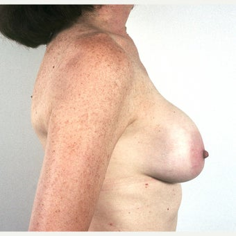 45-54 year old woman treated with Breast Implant Removal and Mastopexy 1815474