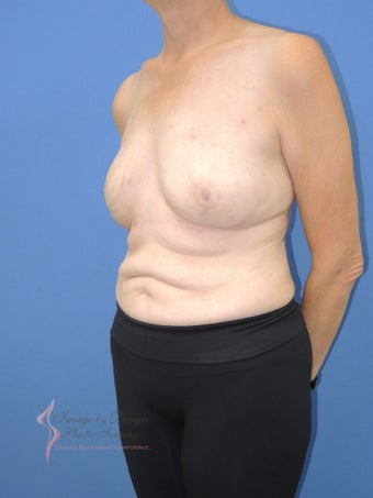 55-64 year old woman treated with Breast Reconstruction 2524805