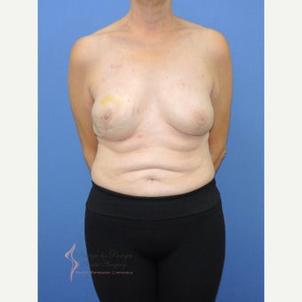 55-64 year old woman treated with Breast Reconstruction after 2524805
