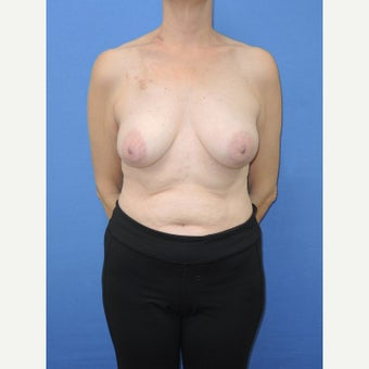 55-64 year old woman treated with Breast Reconstruction before 2524805