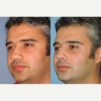 35-44 year old man treated with Revision Rhinoplasty after 3522432