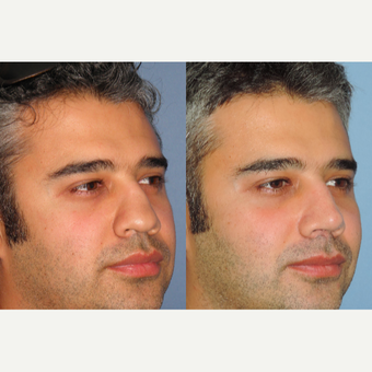 35-44 year old man treated with Revision Rhinoplasty before 3522432