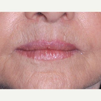 65-74 year old woman treated with Lip Lift after 3668683