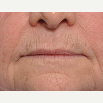 65-74 year old woman treated with Lip Lift before 3668683