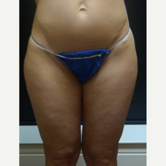 45-54 year old woman treated with Laser Liposuction before 2183537