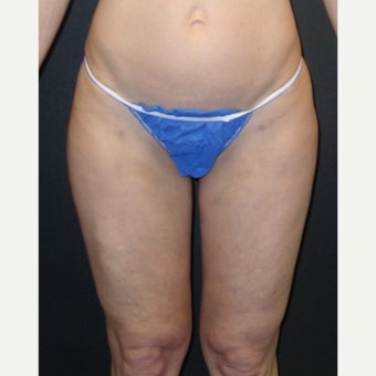 45-54 year old woman treated with Laser Liposuction after 2183537