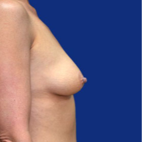 35-44 year old woman treated with Breast Lift with Implants before 3520060