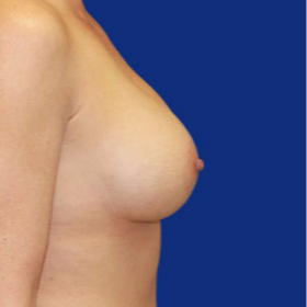 35-44 year old woman treated with Breast Lift with Implants after 3520060