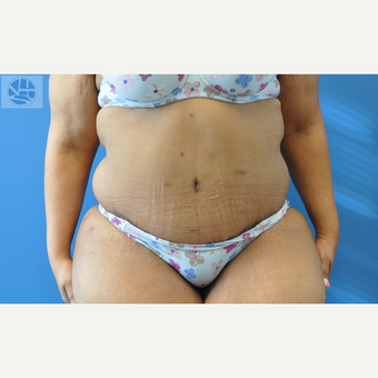 35-44 year old woman treated with Tummy Tuck after 3445990