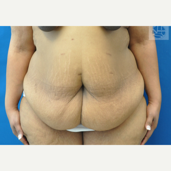 35-44 year old woman treated with Tummy Tuck before 3445990