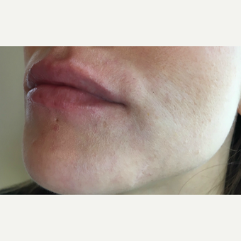 Juvederm Ultra treatment for this 32 year old woman after 3163418