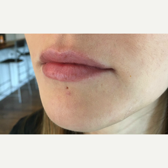 Juvederm Ultra treatment for this 32 year old woman before 3163418