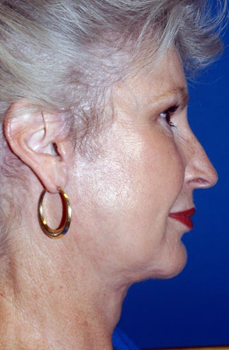 67 Year Old Female Treated for Aging Face after 1028253