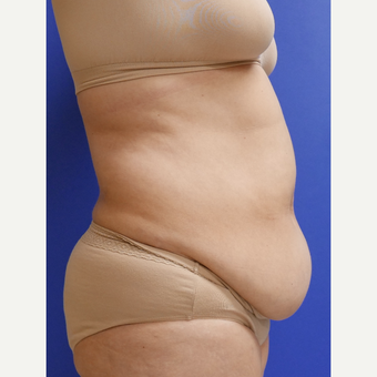 55-64 year old woman treated with Tummy Tuck before 3165597
