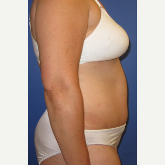 55-64 year old woman treated with Tummy Tuck after 3165597