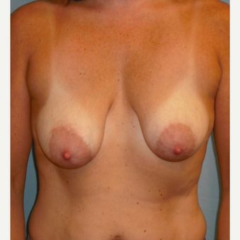 35-44 year old woman treated with Breast Lift with Implants before 3725298