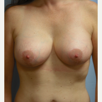 35-44 year old woman treated with Breast Lift with Implants after 3725298