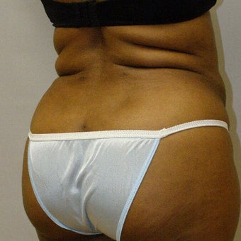 55-64 year old woman treated with Brazilian Butt Lift after 1666305
