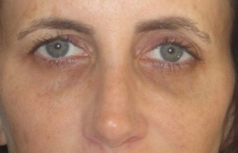 Tear trough deformity (orbital rim hollowying) and loss of midface volume. The dark shadows are a result of a loss of volume in