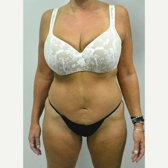 45-54 year old woman treated with Mini Tummy Tuck after 2211322