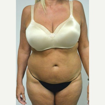 45-54 year old woman treated with Mini Tummy Tuck before 2211322