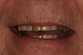 Full mouth rehabilitation. before 349671