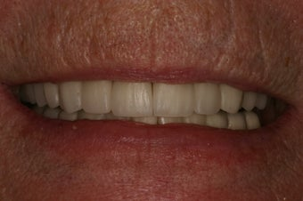 Full mouth rehabilitation. after 349671