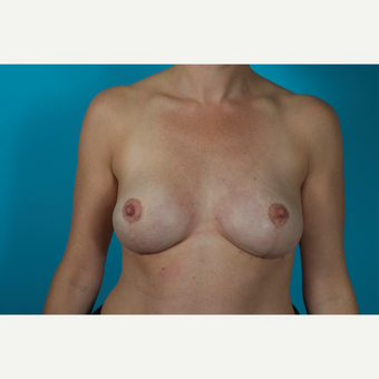 25-34 year old woman treated with Breast Reduction after 2856611