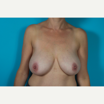 25-34 year old woman treated with Breast Reduction before 2856611