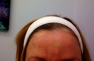 62 Year old Female Treated for Deep Lines on the Forehead with Pellevé after 2112685
