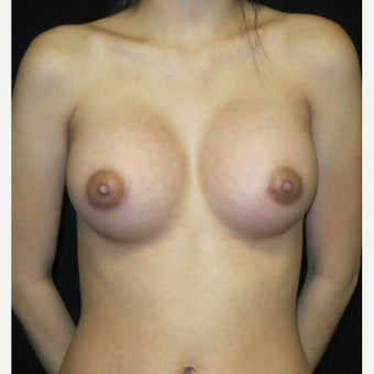 18-24 year old woman treated with Breast Augmentation using Silicone Gummy Bear Implants after 1641802