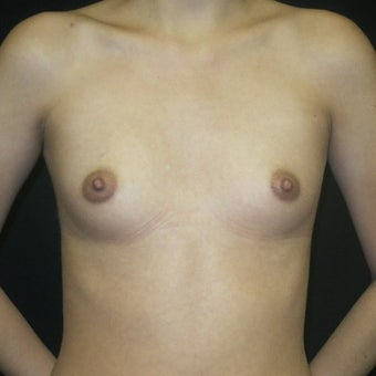 18-24 year old woman treated with Breast Augmentation using Silicone Gummy Bear Implants before 1641802