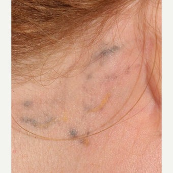 29 year old woman treated with Laser Tattoo Removal